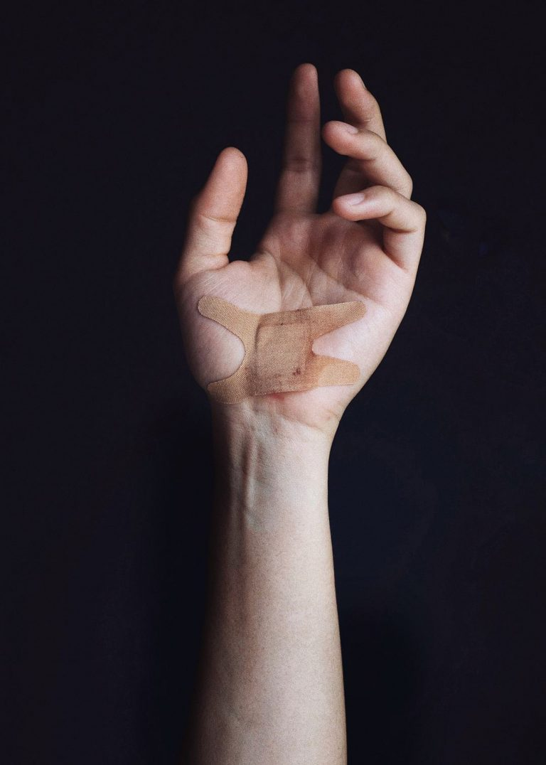 Why CBD Can Help Heal Wounds & Scars